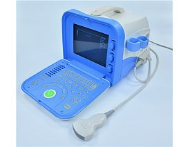 Digital Portable Ultrasonic  Diagnosis Equipment